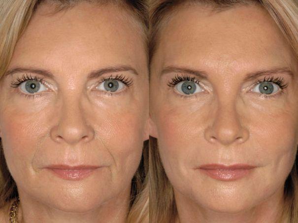Laser Amandinois, raffermissement de la peau du visage et du cou à Saint-Amand-les-Eaux