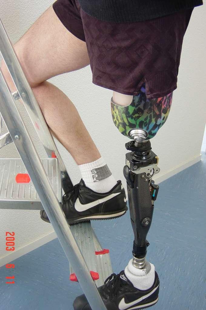 prothèse fémorale